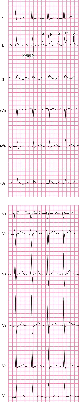 心房頻拍(AT)の心電図
