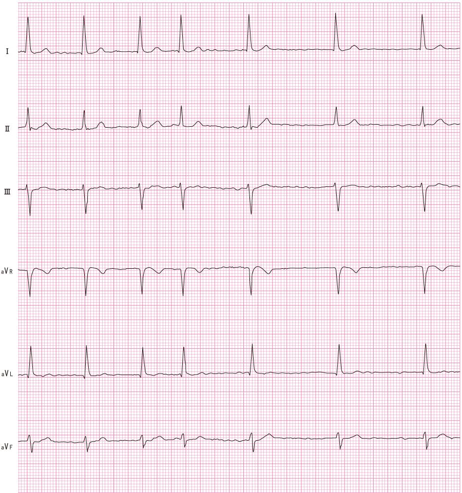 心房細動(Af)の心電図①