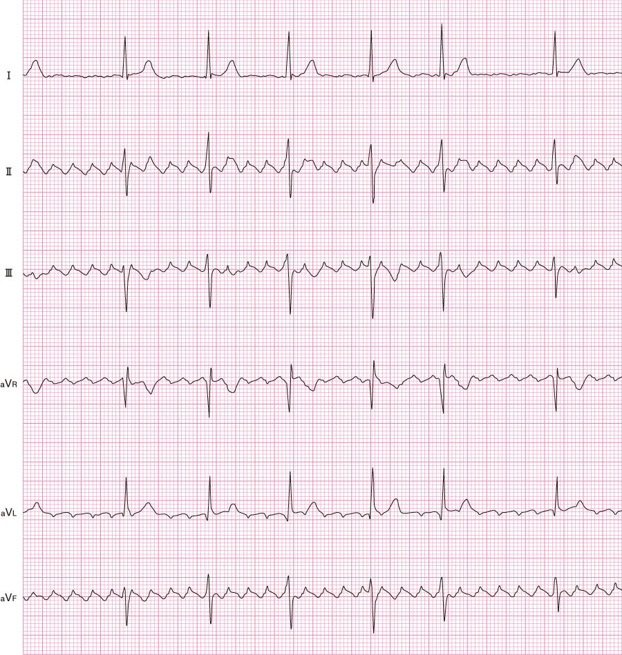 心房粗動(AF)の心電図