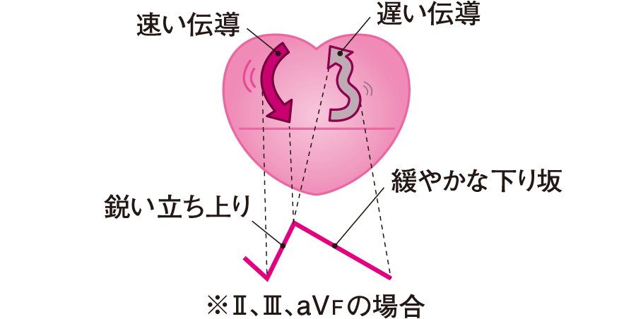 心房粗動の概念図