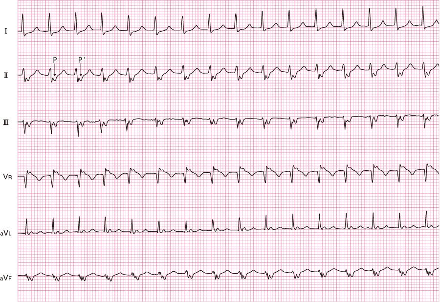 発作性上室性頻拍(PSVT)の心電図