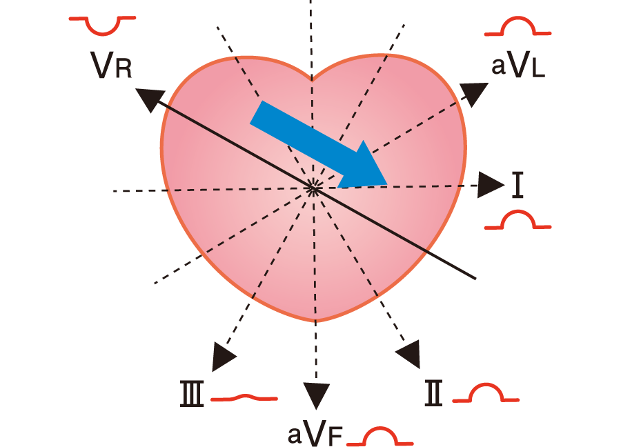 洞性P波の向き