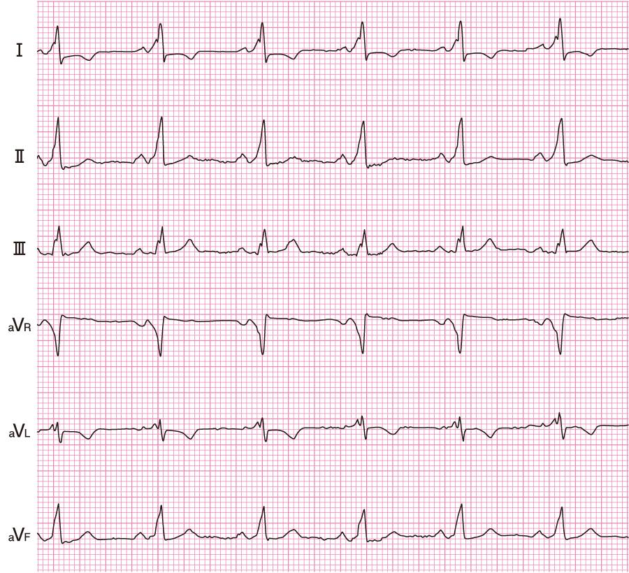 WPW症候群の心電図