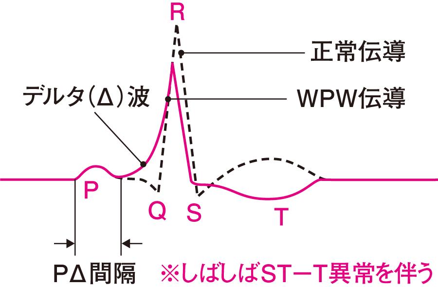 デルタ(Δ)波