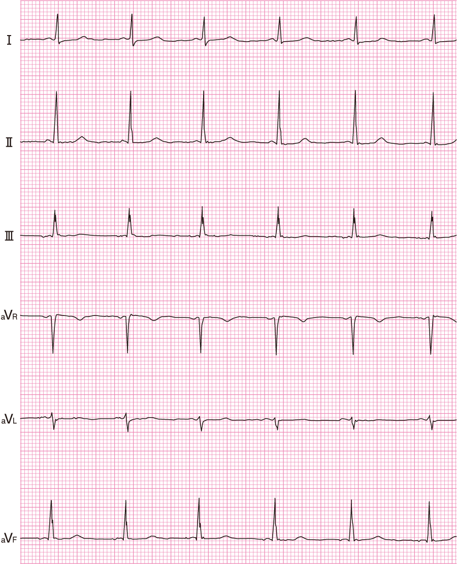 LGL症候群の心電図