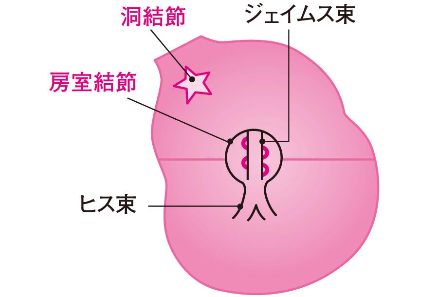 PQ間隔が短い心電図|不整脈の心電図(6)|看護roo![カンゴルー]