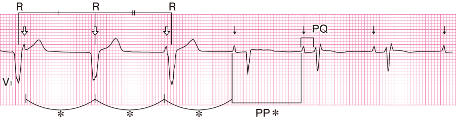 房室解離の心電図