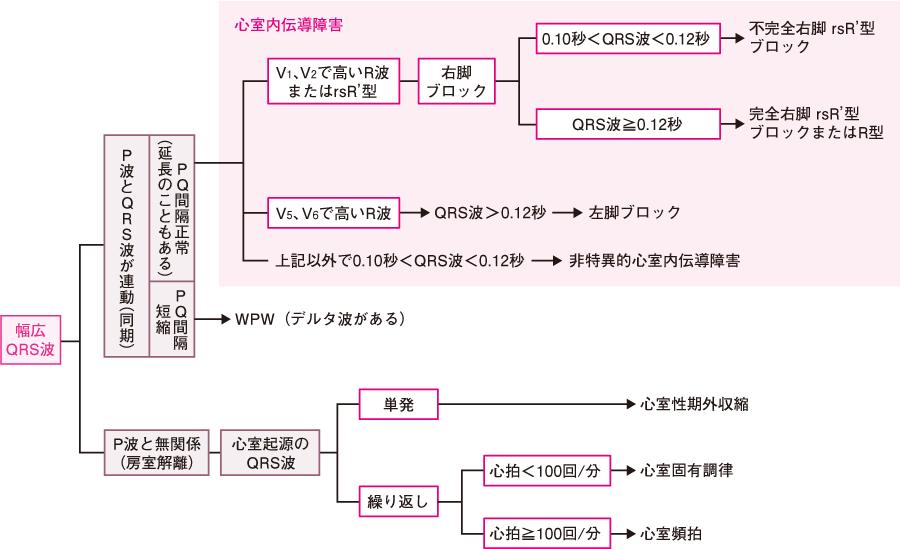 幅広QRS波の解析手順