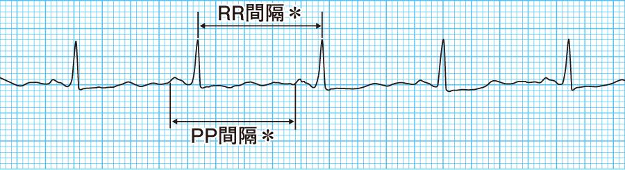 Rr 間隔 心電図