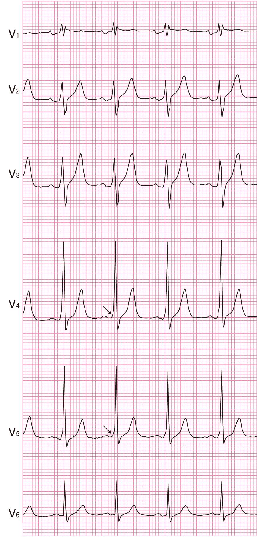 非発作時の心電図