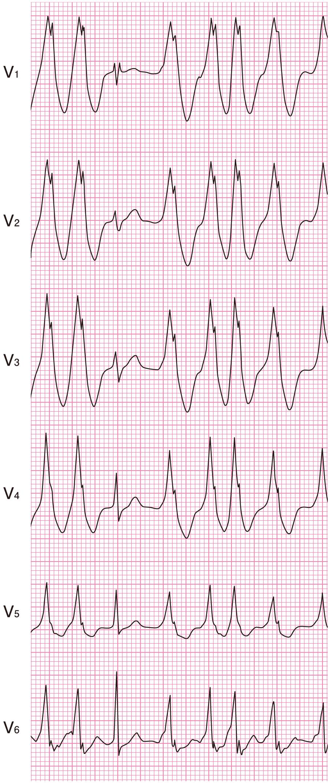 偽性心室頻拍の心電図