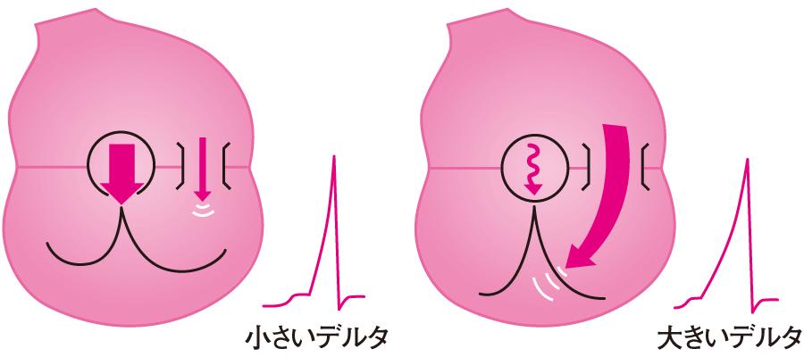 ケント束の特徴