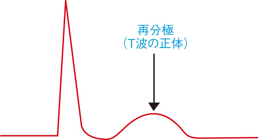 T波の正体