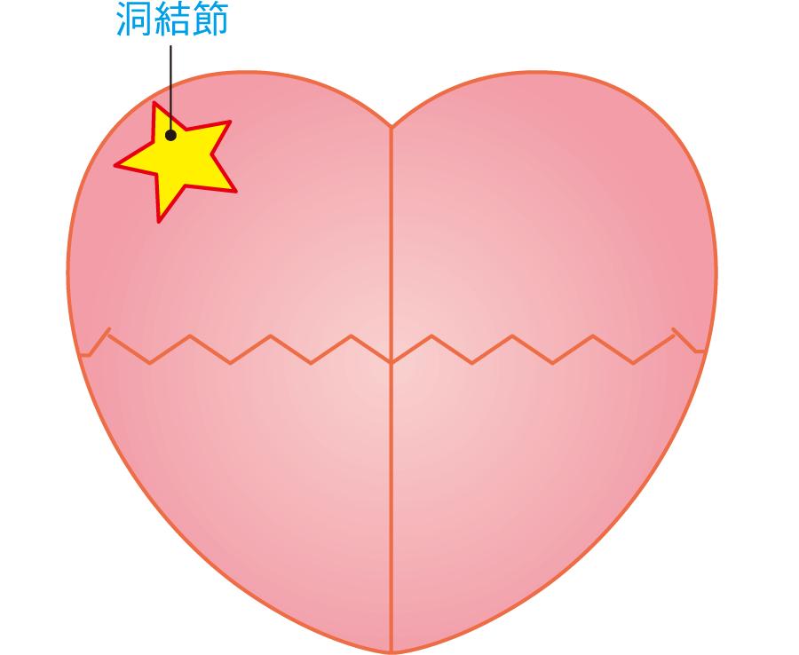 洞結節の位置