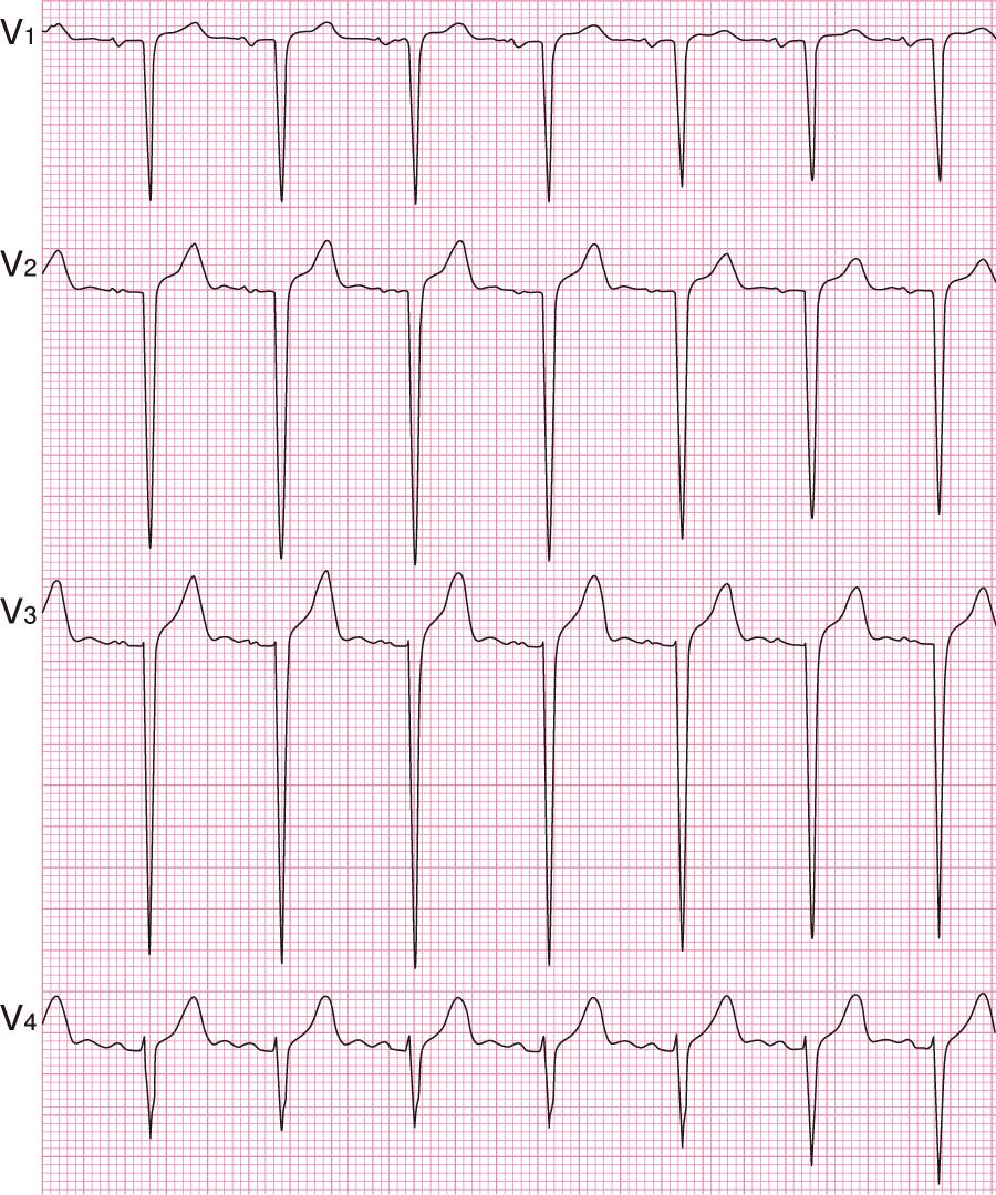 R波の増高不良(poor R progression)の心電図