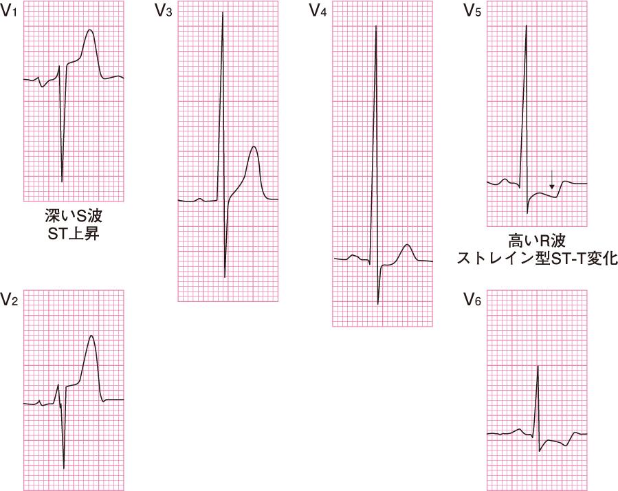 左室肥大の心電図