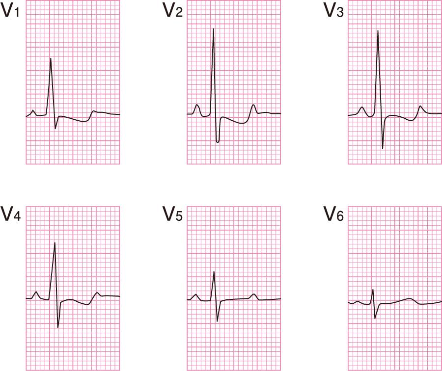 右室肥大の心電図