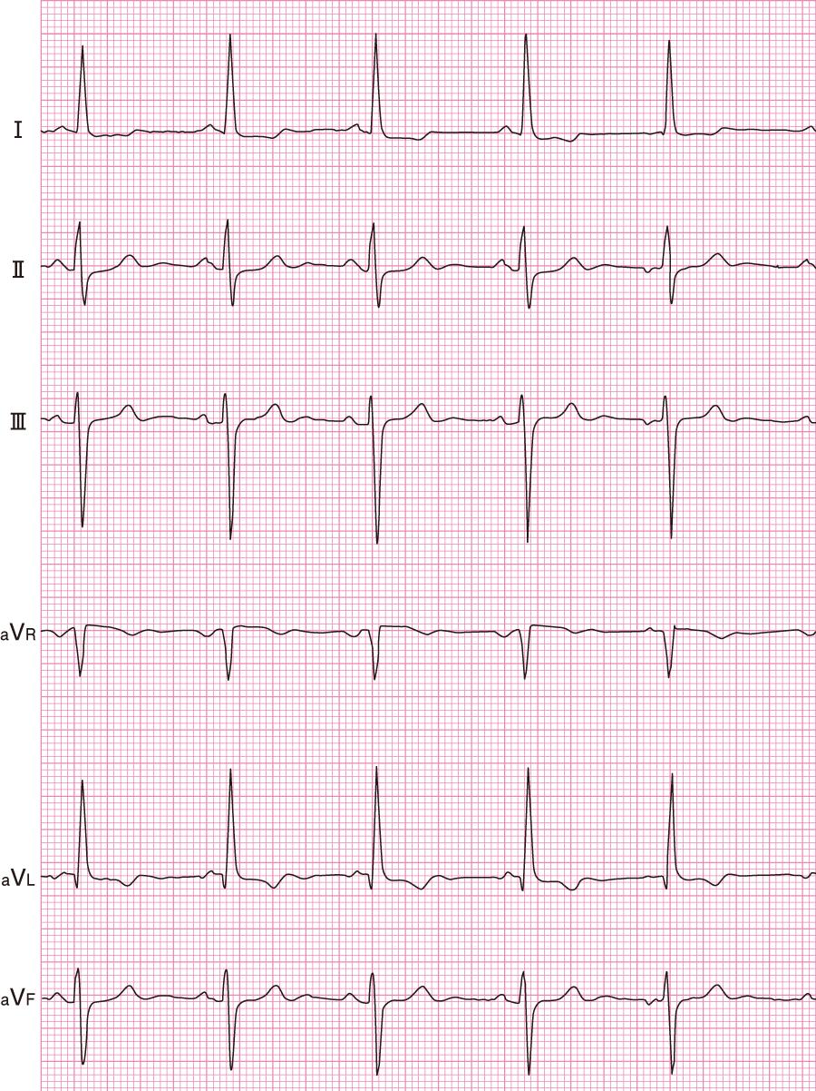 左脚前枝ブロックの心電図