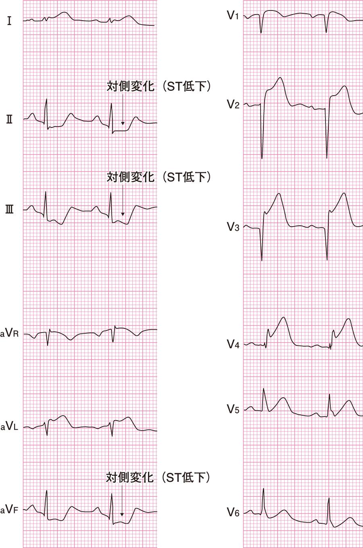 T上昇の心電図(急性心筋梗塞)