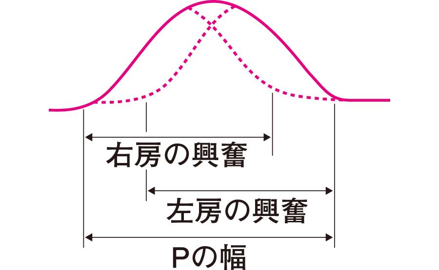 正常P波の構造