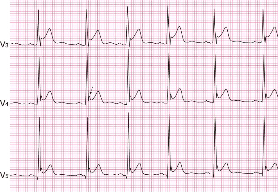 早期再分極の心電図