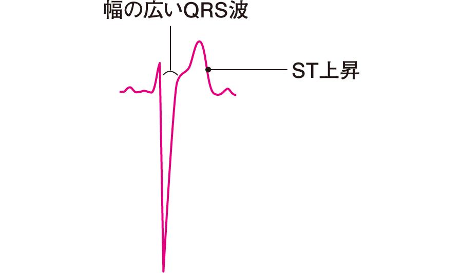 二次性ST-T変化
