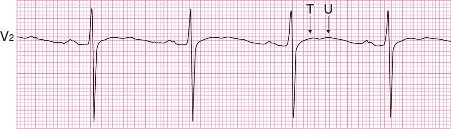 低カリウム血症の心電図