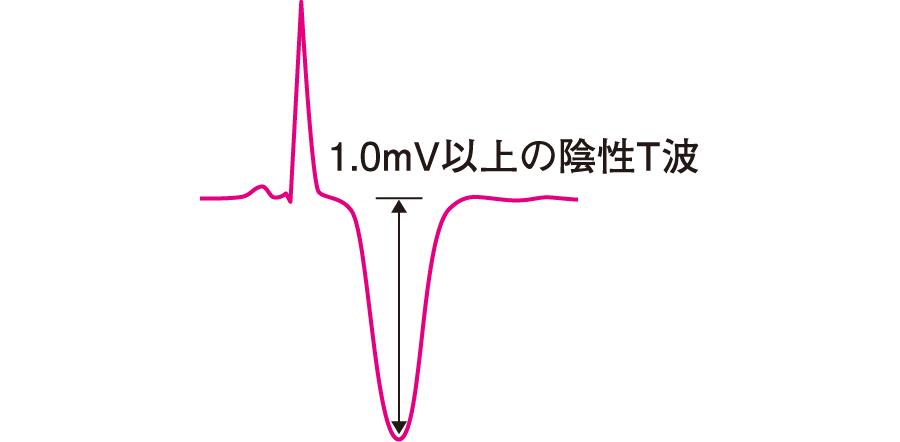 巨大陰性T波