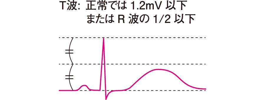 T波の基準