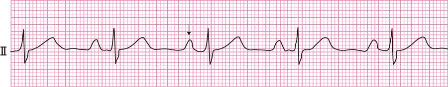 右房負荷(右房拡大)の心電図