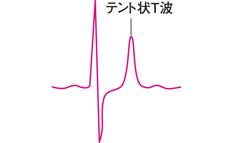 テント状T波