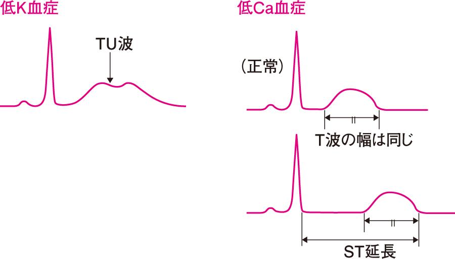 電解質異常に見られる心電図