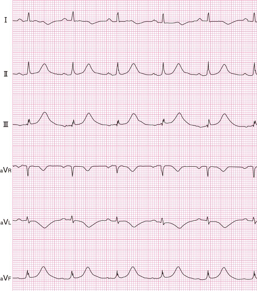 QT延長の心電図(薬剤性)