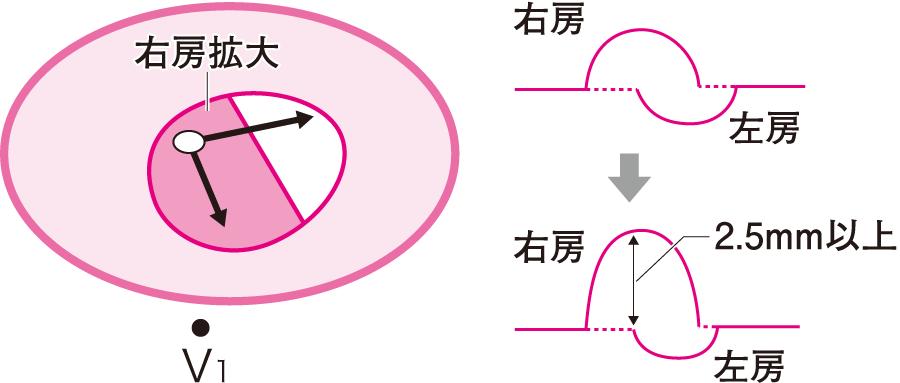 右房負荷(拡大)での興奮の向きとP波