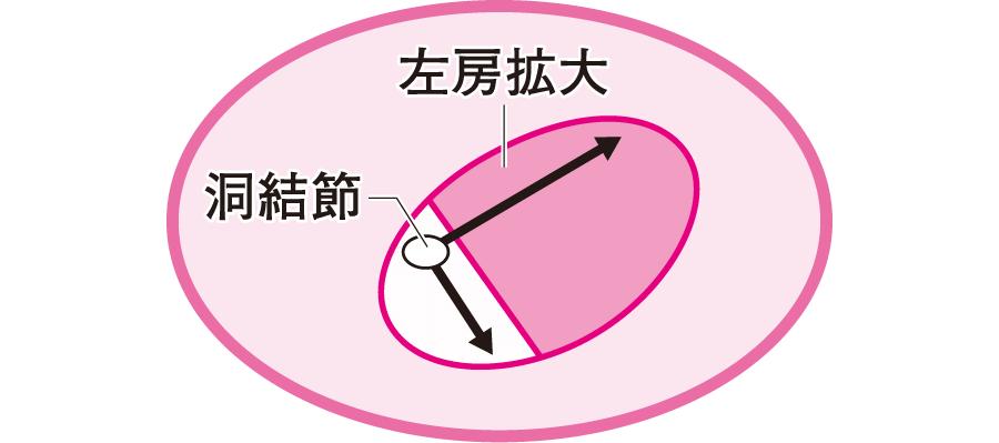 左房負荷(拡大)