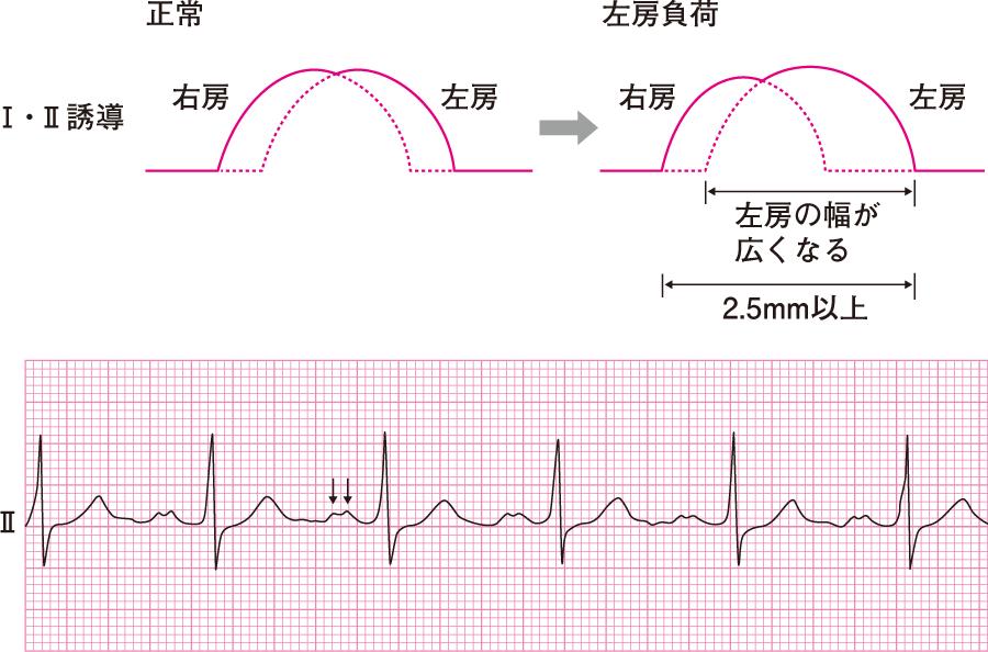 左房負荷(二峰性)の心電図