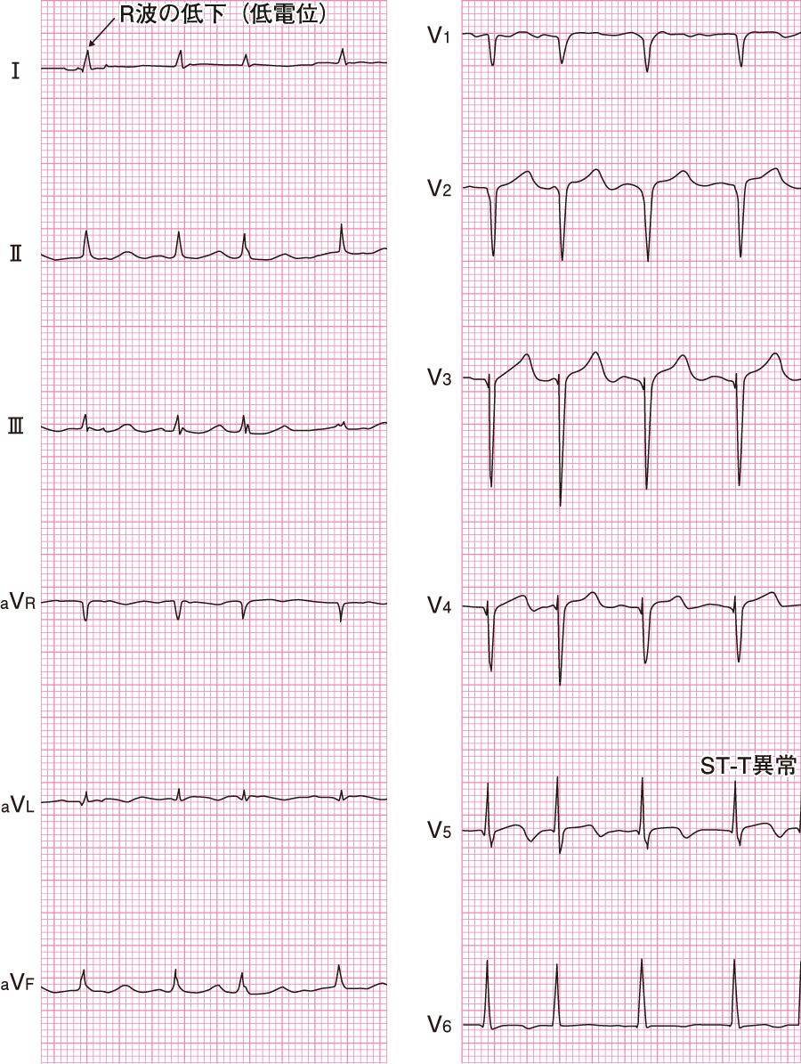 左室機能不全(拡張型心筋症)の心電図