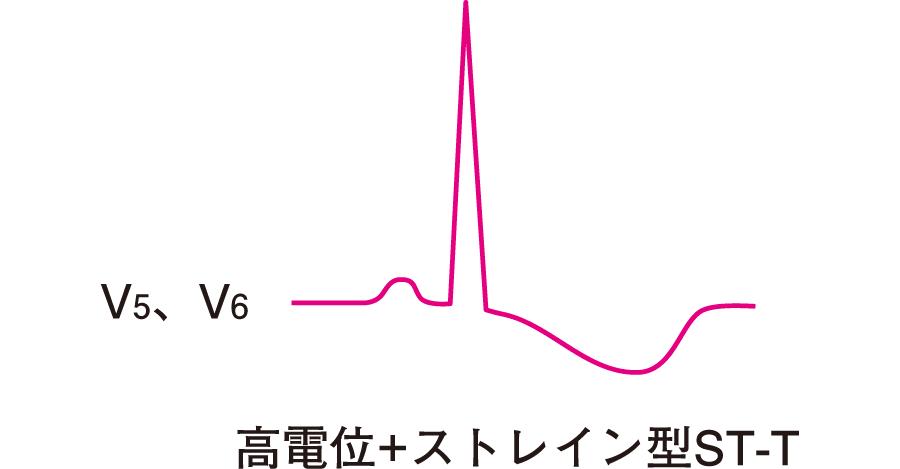 左室肥大の心電図所見