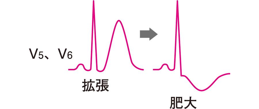 左室拡張と左室肥大の心電図所見