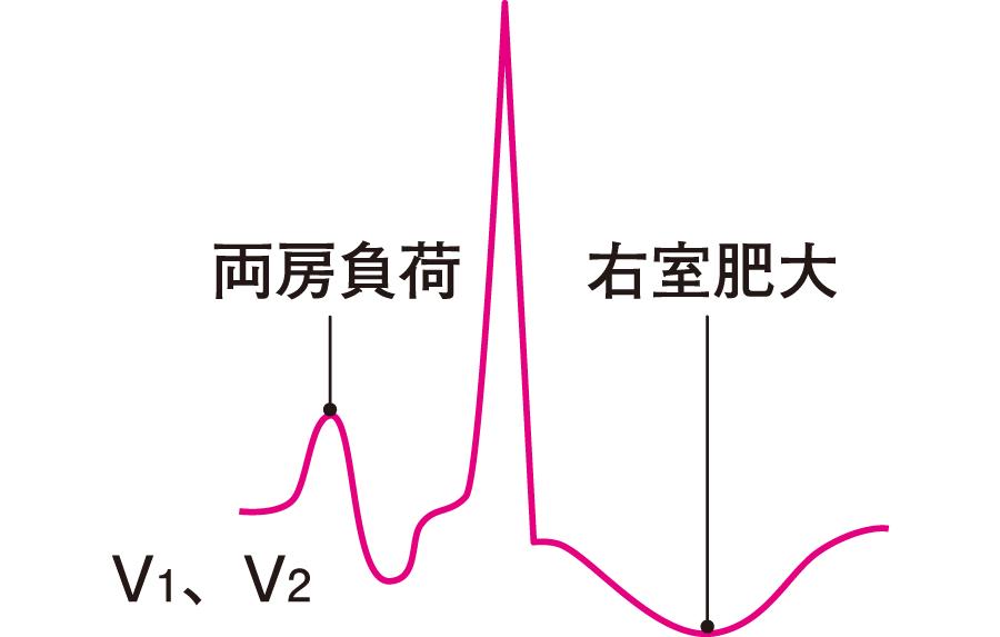 両房負荷+右室肥大の心電図所見