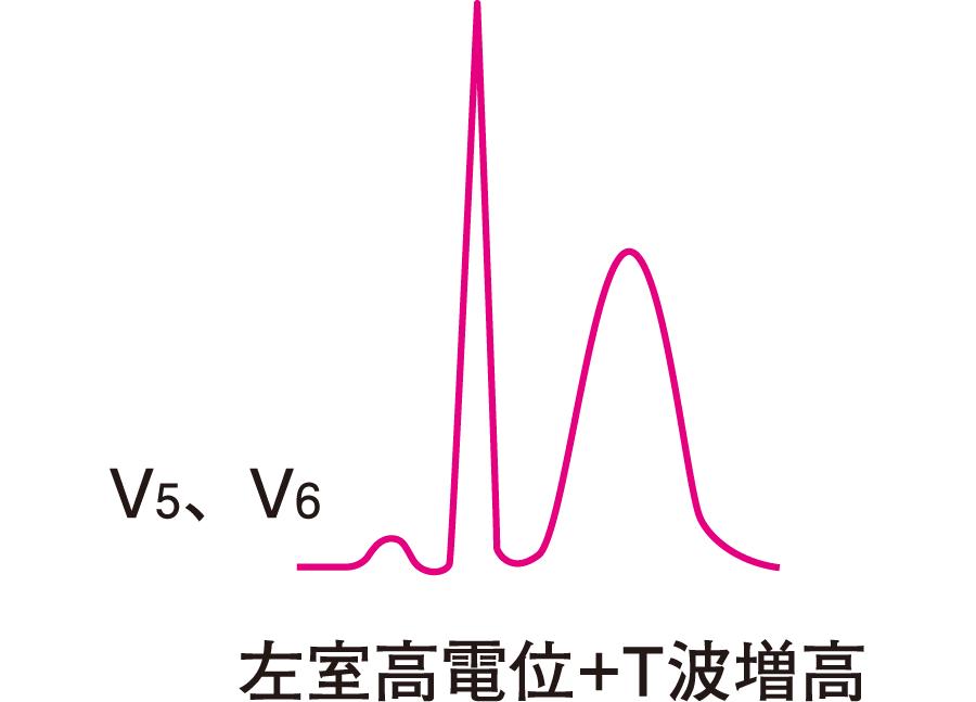 左房負荷と左室拡張の心電図所見