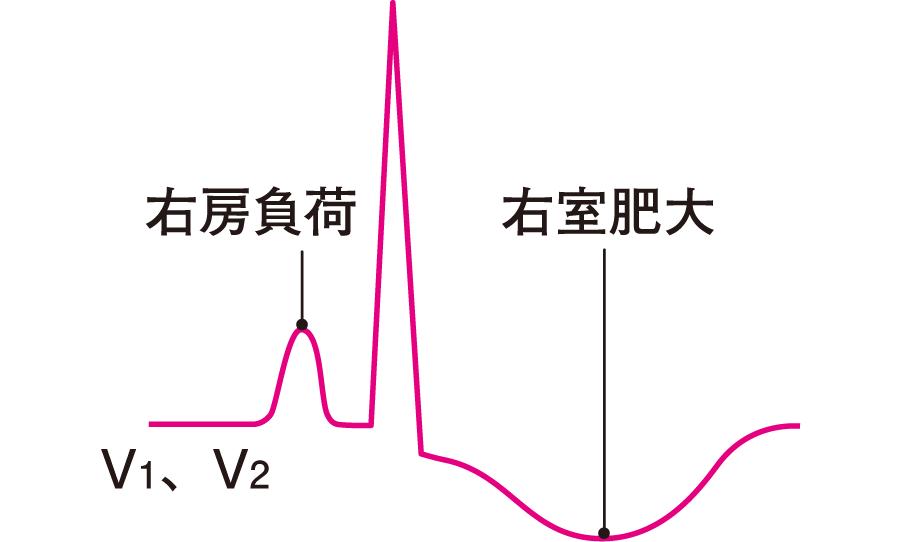 右室肥大の心電図所見