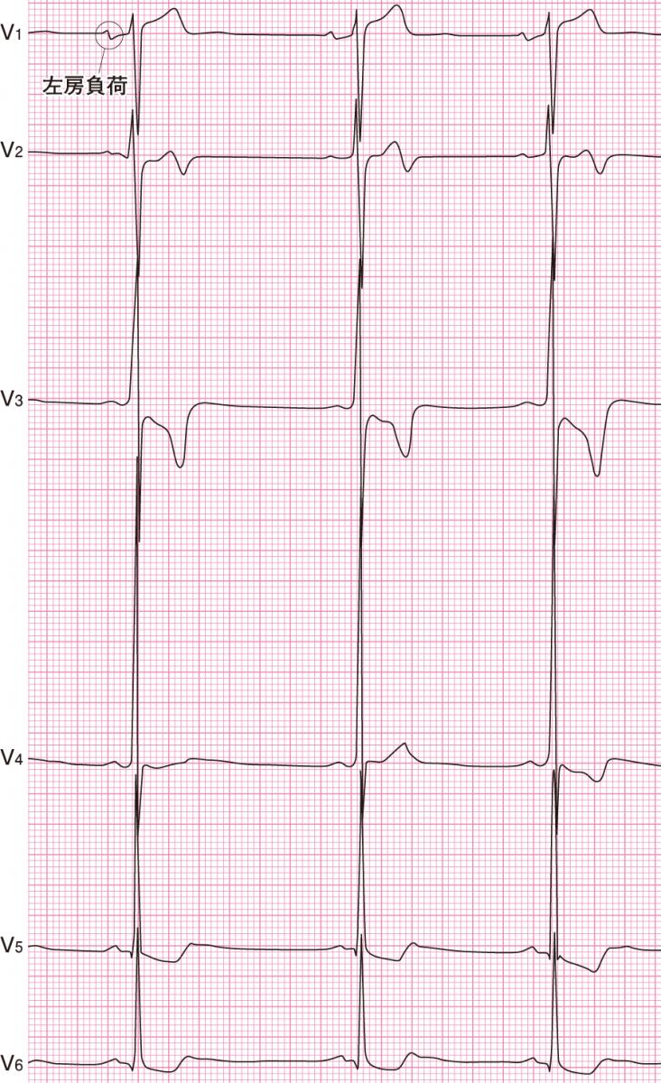 肥大型心筋症の心電図