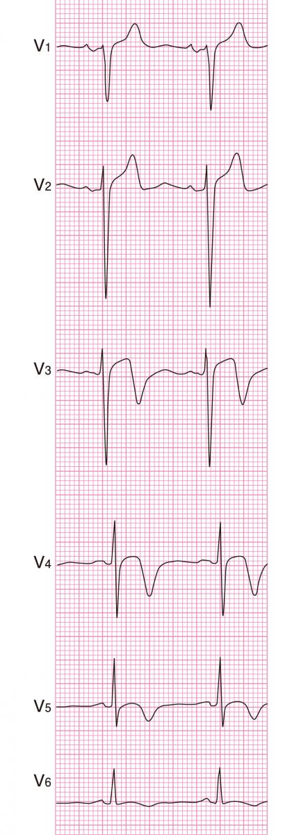 タコツボ型心筋症の心電図