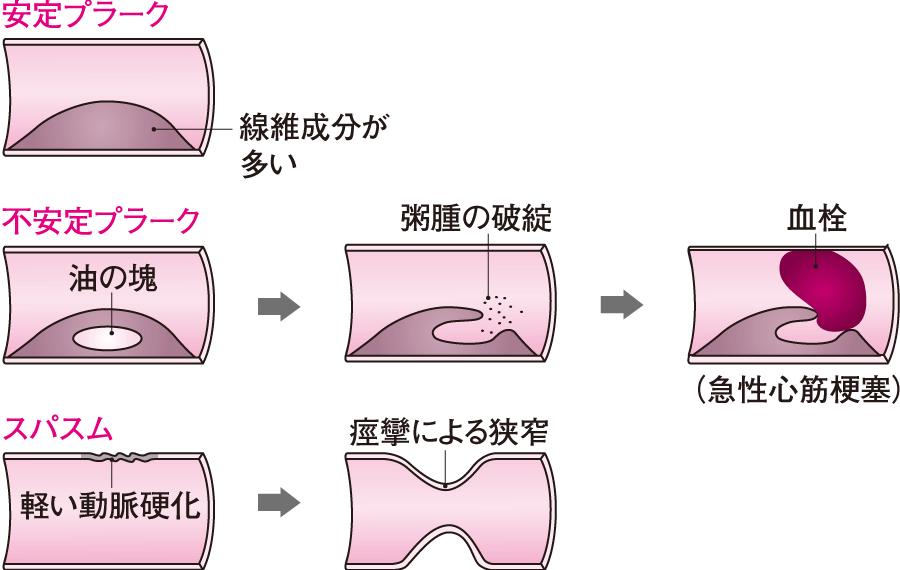 冠動脈の血流障害の原因