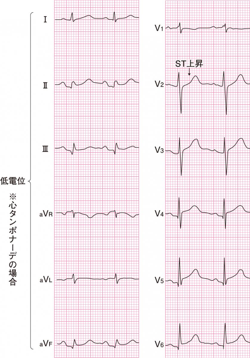 心膜炎の心電図