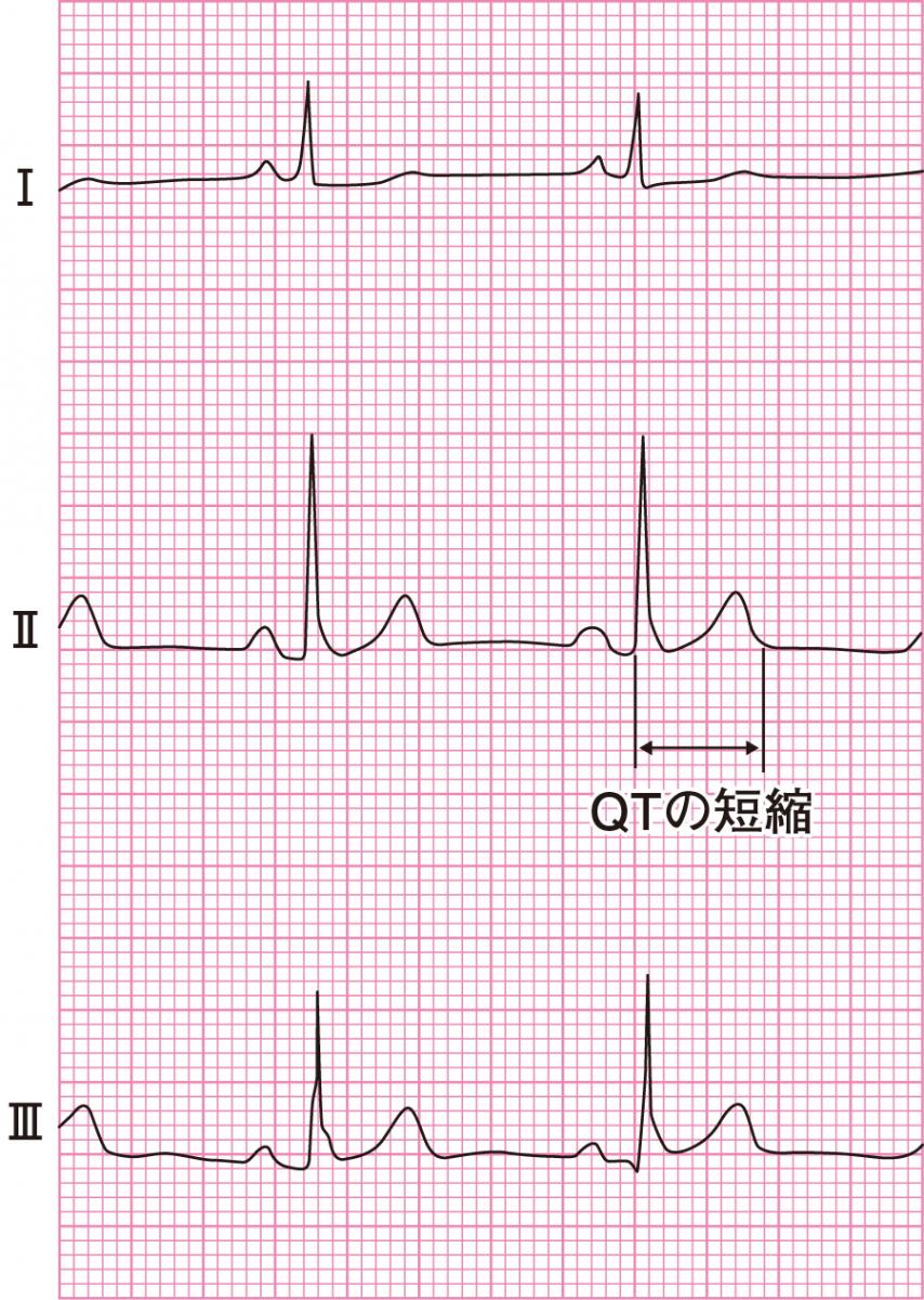 高カルシウム血症の心電図