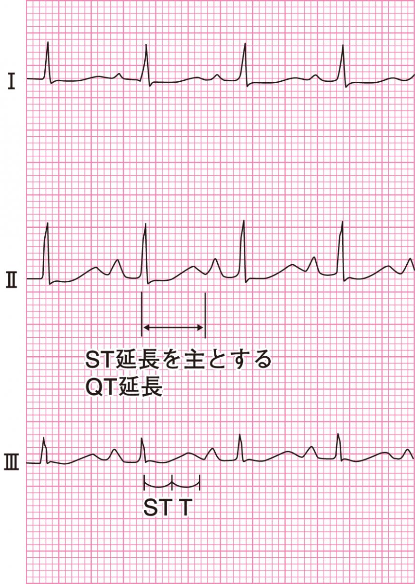 低カルシウム血症の心電図