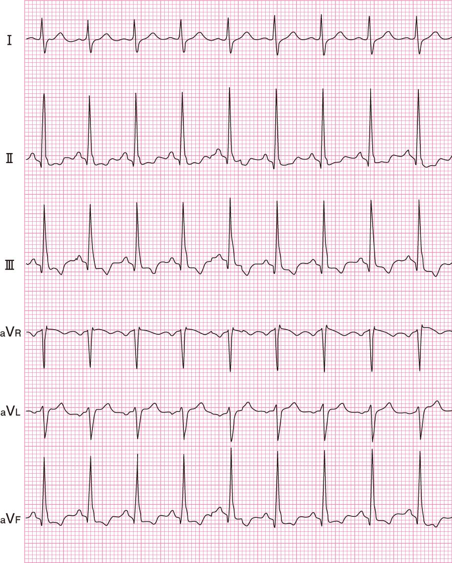 甲状腺機能亢進症(洞性頻脈)の心電図