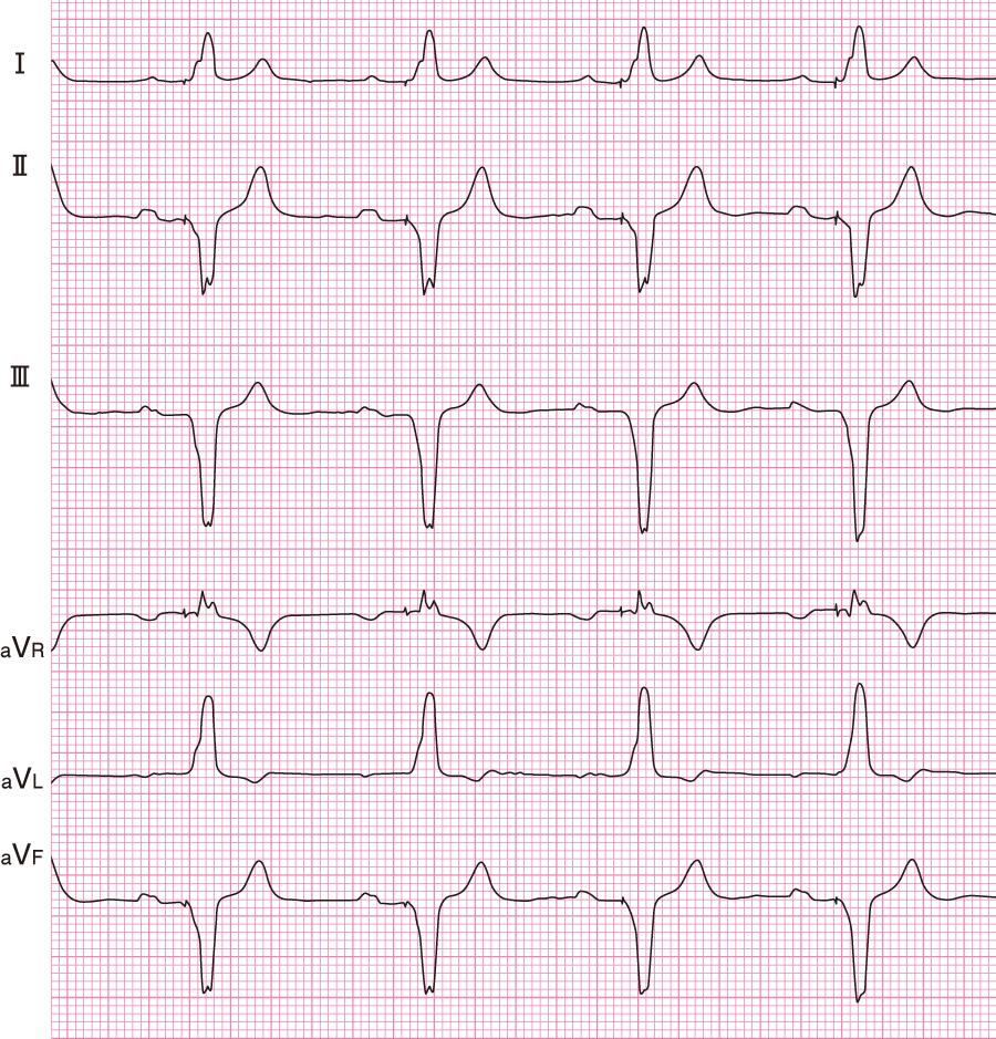 VDDモードの心電図